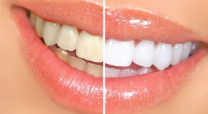 The-Top-8-Remedies-to-Turn-Yellow-Teeth