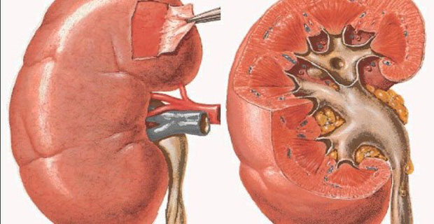 Kidney-Damaging-Habits