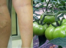 Treat-Varicose-Veins-With-This-Russian-Recipe–-Immediately-Visible-Results