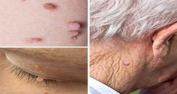 Remove-Skin-Tags-with-Apple-Cider-Vinegar