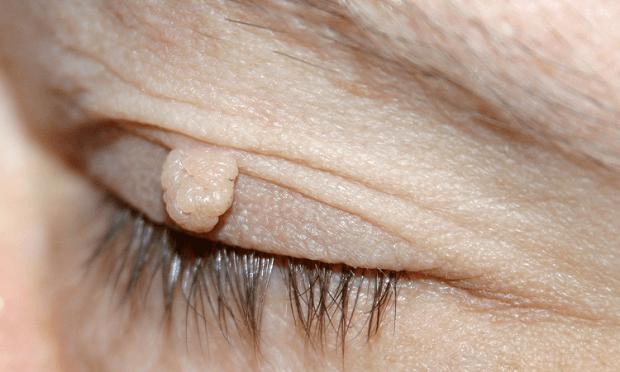 skin-tags-eye-750