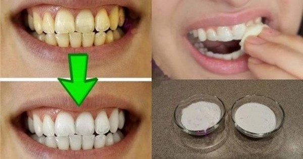 20-whiten-your-teeth-naturally-fb-918x482-780x410-600x315