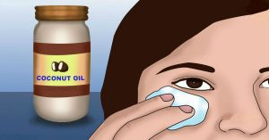 Coconut-Oil-Can-Ma r-If-You-Use-It-For-2-Weeks-This-Way