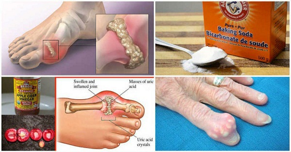 How-To-Quickly-Remove-U -Gout-And-Joint-Pain