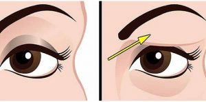 How-To-Treat-Droopy-Eyelids-Naturally.-The-Results-Are-Amazing