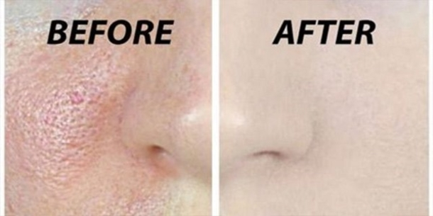 Clean-And-Open-Your-Pores-Naturally-With-3-Simple-Steps-That-You-Can-Do-At-Home-33294-2