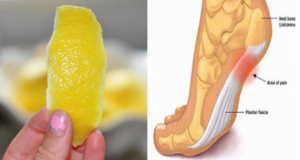 Lemon-Peels-Can-Help-Remove-Joint-Pain-In-Ways-You-d-Never-Imagine-remedy
