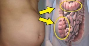 sAre-Bloated.-Learn-How-To-Get-Rid-Of-It-Fast-38390-2
