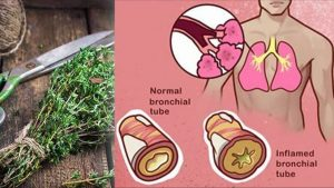 "15-""Super-Herbs""-to-Kill-Infections-and-Clear-Mucus-From-Your-Lungs-in-No-Time-678x381"