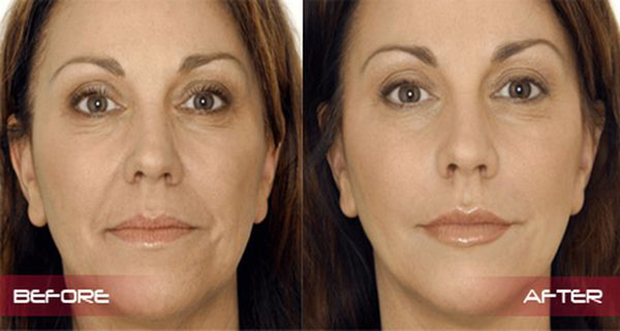 Natural-Recipe-Save-You-From-Wrinkles-Within-7-Days