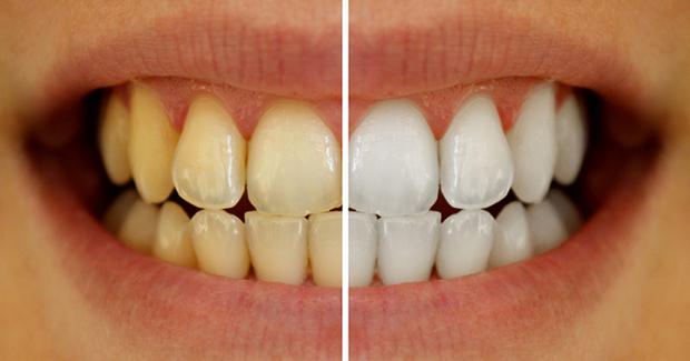 Ways-To-Whiten-Your-Yellowish-Teeth-Naturally