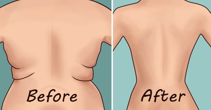 eliminate-back-fat-underarm-flab-4-quick-exercises