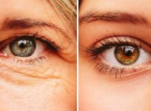 Amazing All-Natural Droopy Eyelid Remedy